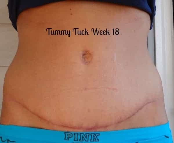 Tummy-Tuck-After-Pictures-Week-18