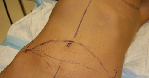 Mommy Makeover Experience: Post-Op Review - Tummy Tuck and Breat Implant Surgery.
